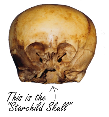 New Starchild Skull Discoveries, Its Not of This Earth 20131125142310-cutout-skull