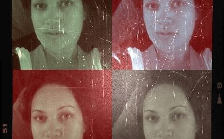 20120611192818-1_jinx_focal_swollen